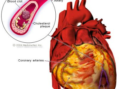 हृदयघातवाट कसरी वच्ने ?